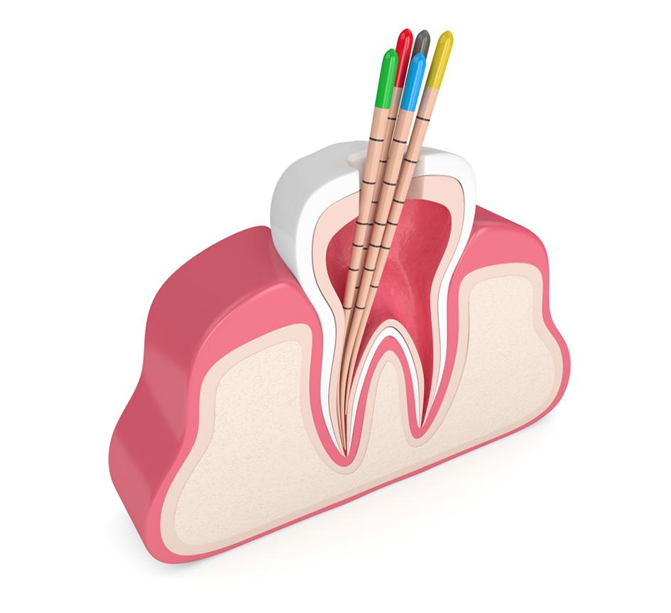Endodontie | Wurzelfüllung