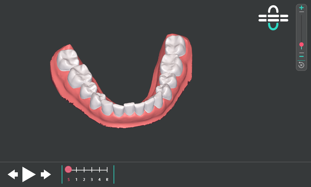 Animationsdarstellung zur Zahnbewegung (eigene Aufnahme)