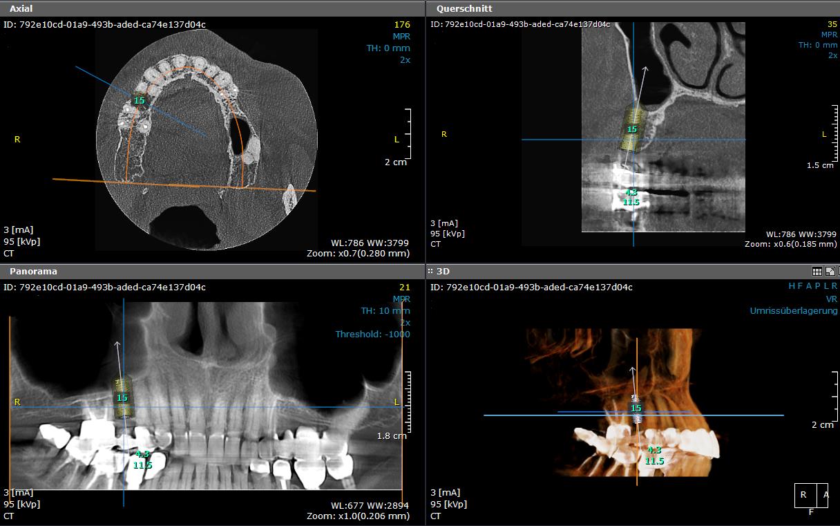 DVT- unterschiedliche Schnittebenen der 3D-Darstellung (eigene Aufnahme)