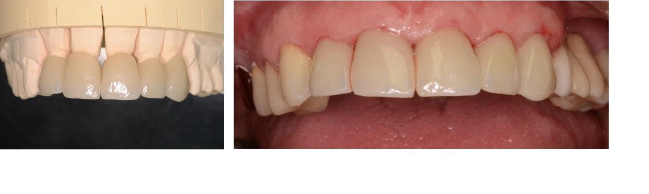 Zahnersatz (eigene Aufnahme)
